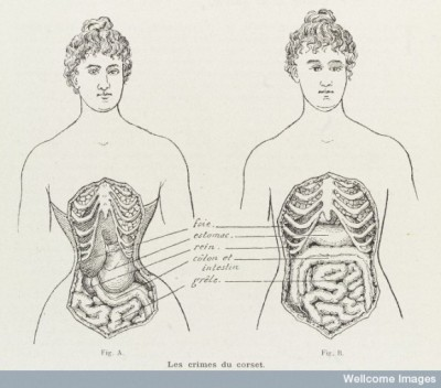 L0038404 Illustrations to denounce the crimes of the corset Credit: Wellcome Library, London. Wellcome Images images@wellcome.ac.uk https://wellcomeimages.org 2 Illustrations to denounce the crimes of the corset and how it cripples and restricts the bodily organs in women. Engraving 1908 Published:  -  Printed: 10th October 1908 Copyrighted work available under Creative Commons by-nc 2.0 UK, see https://wellcomeimages.org/indexplus/page/Prices.html